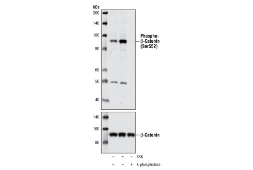 Western blot analysis of total cell lysates from SK-N-MC cells, treated with forskolin (FSK) for 30 minutes, or the lysate was treated with λ phosphatase for 1 hour, using Phospho-β-Catenin (Ser552) Antibody (upper) or β-Catenin Antibody (Amino-terminal Antigen) #9581 (bottom).