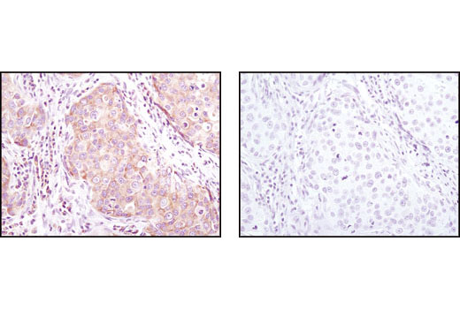 Immunohistochemical analysis of paraffin-embedded human breast carcinoma using eIF4GI Antibody in the presence of control peptide (left) or antigen-specific peptide (right).