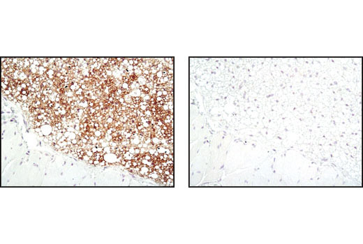 Immunohistochemical analysis of paraffin-embedded mouse brown fat using SCD1 (C12H5) Rabbit mAb in the presence of control peptide (left) or antigen-specific peptide (right).