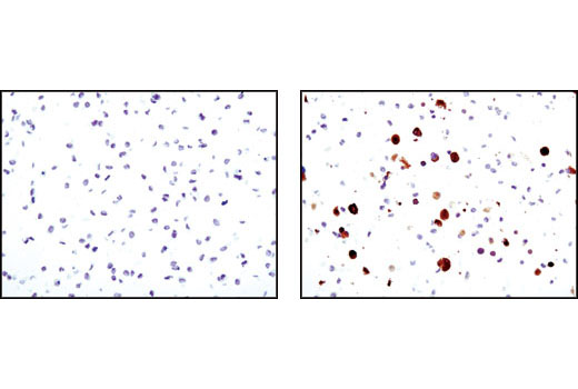 Immunohistochemical analysis of paraffin-embedded 3T3-L1 cells undifferentiated (left) or differentiated (right) using SCD1 (C12H5) Rabbit mAb.