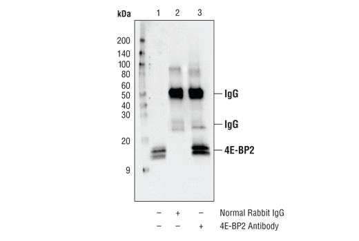 Immunoprecipitation Polyclonal Antibody - count 20