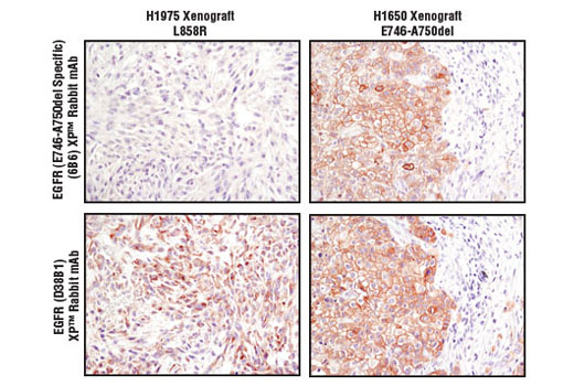 Immunohistochemistry Image 1: EGF Receptor (E746-A750del Specific) (D6B6) XP® Rabbit mAb