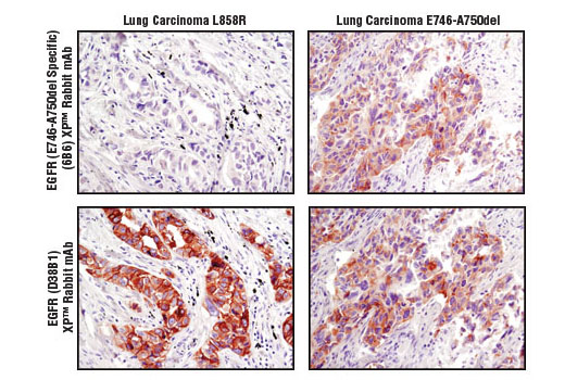Immunohistochemistry Image 2: EGF Receptor (E746-A750del Specific) (D6B6) XP® Rabbit mAb