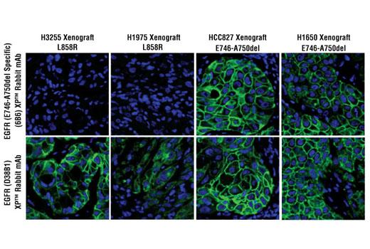 Monoclonal Antibody Immunofluorescence Paraffin Tyrosine Kinases Substrates - count 20