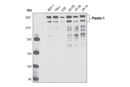 Western blot analysis of extracts from various cell types using Plectin-1 Antibody. Molecular weights were determined using a pre-stained molecular weight marker (not shown).