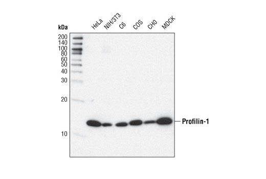 Western blot analysis of extracts from various cell types using Profilin-1 (C56B8) Rabbit mAb.