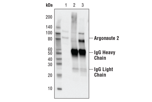 Image 2: RNAi Machinery Antibody Sampler Kit