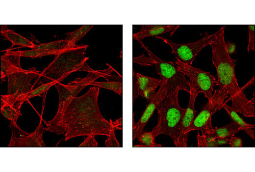 Confocal immunofluorescent analysis of A-204 cells, untreated (left) or tunicamycin-treated (right), using CHOP (L63F7) Mouse mAb (green). Actin filaments have been labeled with DY-554 phalloidin (red).