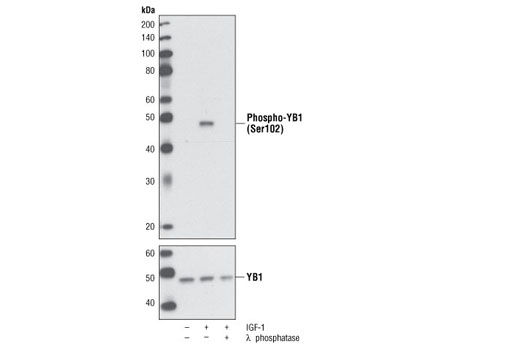 Western blot analysis of extracts from MCF-7 cells, serum-starved overnight and then either left untreated or treated with IGF-1 (50 ng/ml) for one hour, using Phospho-YB1 (Ser102) (C34A2) Rabbit mAb (upper) or YB1 Antibody #2749 (lower). Further treatment of the IGF-1-treated cell extracts with λ phosphatase depleted the phospho-specific YB1 signal (upper), but not total YB1 (lower).