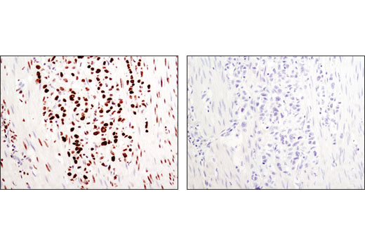 Image 11: Methyl-Histone H3 (Lys36) Antibody Sampler Kit