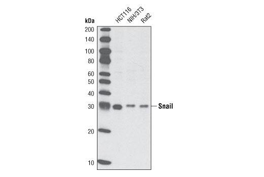 Monoclonal Antibody Epithelial to Mesenchymal Transition - count 20