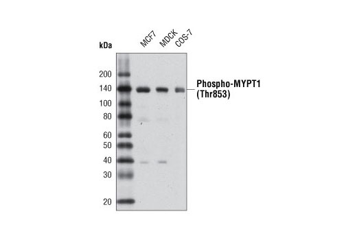 Western blot analysis of extracts from various cell types using Phospho-MYPT1 (Thr853) Antibody.