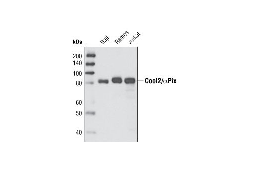 Western blot analysis of extracts from various cell types using Cool2/αPix (C23D2) Rabbit mAb.