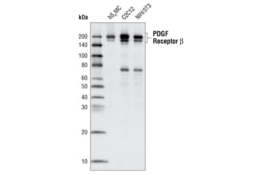 Western blot analysis of extracts from hSkMC, C2C12 and NIH/3T3 cells using PDGF Receptor β (C82A3) Rabbit mAb.