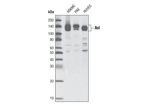 Western blot analysis of extracts from human skeletal muscle cells (hSkMC), PAE and HUVEC cells using Axl (C44G1) Rabbit mAb.