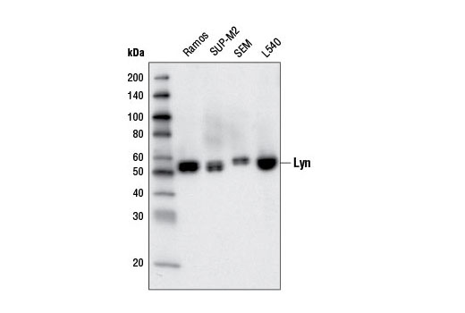 Western Blotting Image 1: Lyn (5G2) Mouse mAb