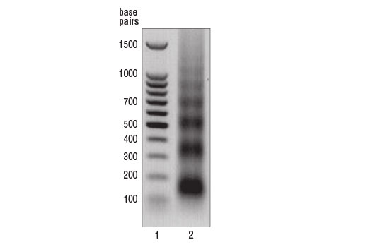 Image 1: Micrococcal Nuclease