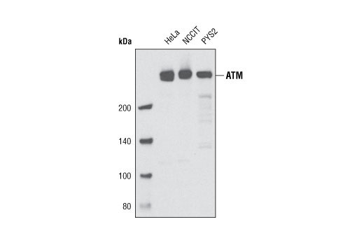 Monoclonal Antibody - ATM (D2E2) Rabbit mAb - Western Blotting, UniProt ID Q13315, Entrez ID 472 #2873, Antibodies to Kinases