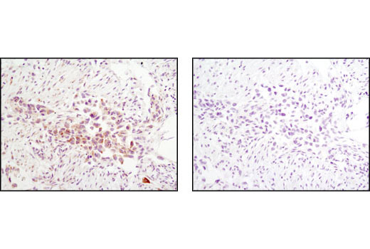 Immunohistochemical analysis of paraffin-embedded human lung carcinoma using Jak2 (D2E12) XP<sup>®</sup> Rabbit mA in the presence of control peptide (left) or Jak2 Blocking Peptide #1039 (right).