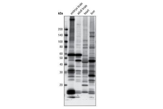 Western blot analysis of extracts from various mouse tissues using Acetylated-Lysine (Ac-K-100) MultiMab™ Rabbit mAb mix.
