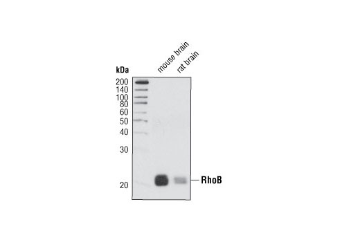 Western blot analysis of extracts from mouse and rat brain tissue using RhoB Antibody.