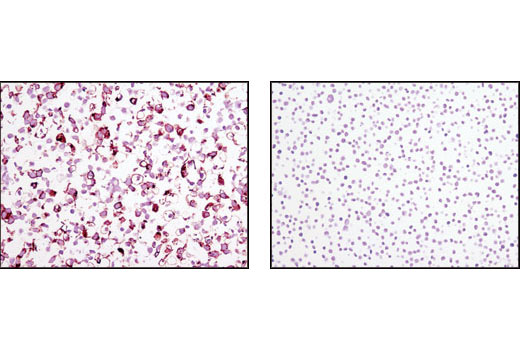 Immunohistochemical analysis of paraffin-embedded NTERA (positive, left) and Jurkat (negative, right) cell pellets using TRA-1-81 (TRA-1-81) Mouse mAb.