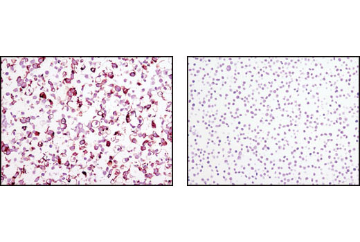 Immunohistochemical analysis of paraffin-embedded NTERA (positive, left) and Jurkat (negative, right) cell pellets using TRA-1-60(S) (TRA-1-60(S)) Mouse mAb.