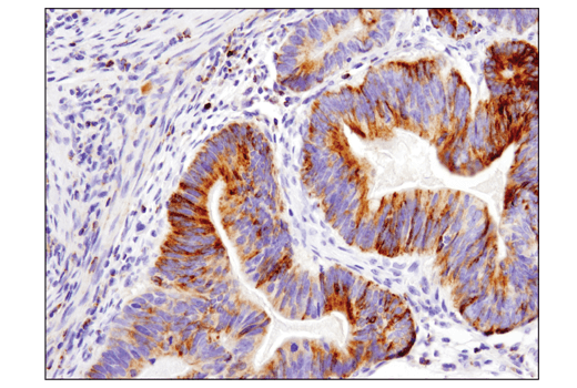 Immunohistochemical analysis of paraffin-embedded human colon adenocarcinoma using Bim (C34C5) Rabbit mAb performed on the Leica® BOND™ Rx.