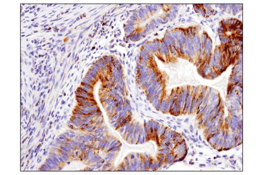 Immunohistochemical analysis of paraffin-embedded human colon adenocarcinoma using Bim (C34C5) Rabbit mAb performed on the Leica® BOND™ Rx.