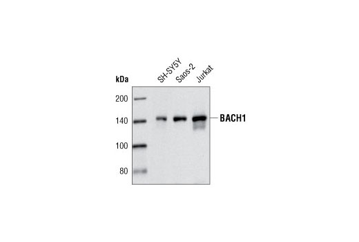 Western blot analysis of extracts from SH-SY5Y, Saos-2 and Jurkat cells using BACH1/BRIP1 Antibody.