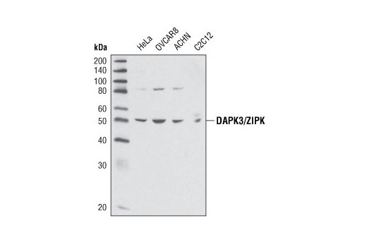 Western blot analysis of extracts from various cell lines using DAPK3/ZIPK Antibody.