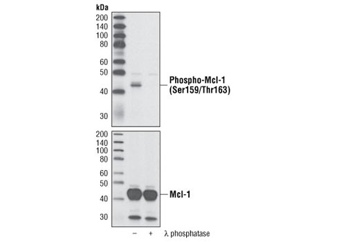 Western blot analysis of extracts from HeLa cells transfected with human Mcl-1, untreated or treated with λ-phosphatase, using Phospho-Mcl-1 (Ser159/Thr163) Antibody (upper) or with total Mcl-1 Antibody #4572 (lower).