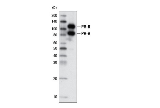 Western blot analysis of extracts from T47D cells using Progesterone Receptor A/B (C89F7) Rabbit mAb.