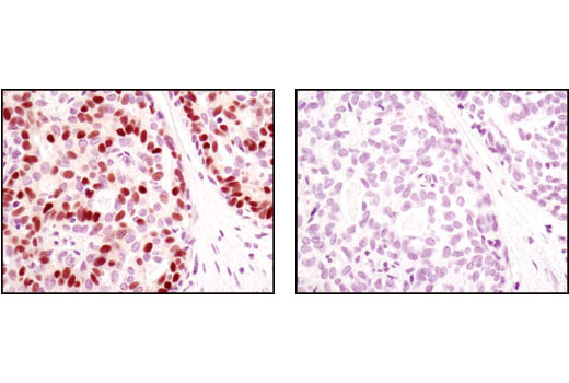 Immunohistochemical analysis of paraffin-embedded human breast carcinoma using Progesterone Receptor A/B (C89F1) Rabbit mAb in the presence of control peptide (left) or antigen-specific peptide (right).