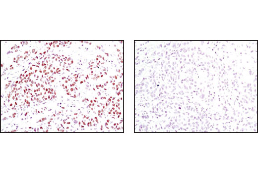 Immunohistochemical analysis of paraffin-embedded human breast carcinoma using Progesterone Receptor B Receptor (C1A2) Rabbit mAb in the presence of control peptide (left) or antigen-specific peptide (right).