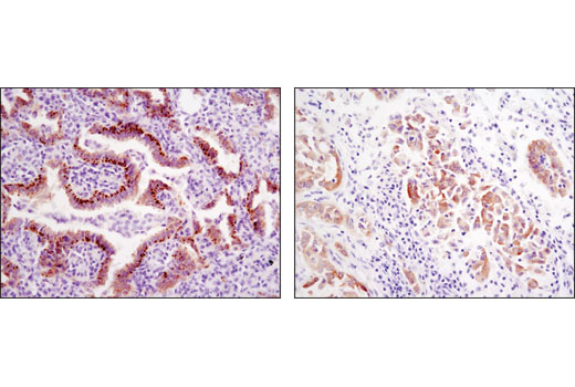 Immunohistochemical analysis of paraffin-embedded human lung carcinomas showing distinct localization using ROS1 (D4D6<sup>®</sup>) Rabbit mAb.