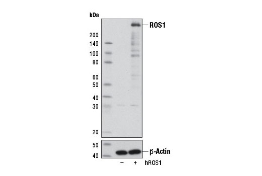 Western blot analysis of extracts from 293T cells, mock transfected (-) or transfected with a construct expressing wildtype ROS1 (hROS1; +), using ROS1 (D4D6<sup>®</sup>) Rabbit mAb (upper) or β-Actin (D6A8) Rabbit mAb #8457 (lower).