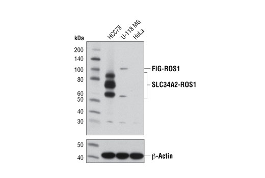 Western blot analysis of extracts from HCC78 (SLC34A2-ROS1), U-118 MG (FIG-ROS1), and HeLa (ROS1 negative) cells using ROS1 (D4D6<sup>®</sup>) Rabbit mAb (upper) or β-Actin (D6A8) Rabbit mAb #8457 (lower). Note: HCC78 cells express the 85, 70, and 59 kDa forms of the SLC34A2-ROS1 fusion protein (7).