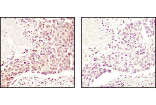 Immunohistochemical analysis of paraffin-embedded human breast carcinoma using Ubiquitin Antibody in the presence of control peptide (left) or antigen-specific peptide (right).