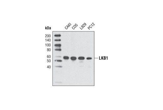 Western blot analysis of extracts from various cell lines using LKB1 (D60C5) Rabbit mAb.