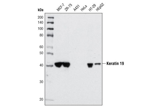 Western blot analysis of extracts from various cell types using Keratin 19 (BA17) Mouse mAb. As expected, the protein is absent in A-431 and HeLa cells.
