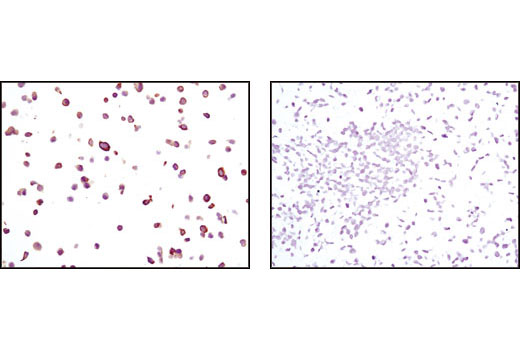 Immunohistochemical analysis of paraffin-embedded MCF-7 cells (positive, left) and A-431 cells (negative, right), using Keratin 19 (BA17) Mouse mAb.
