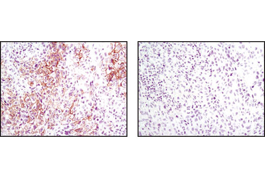 Immunohistochemical analysis of paraffin-embedded human lung carcinoma, untreated (left) or λ phosphatase-treated (right), using Phospho-Met (Tyr1234/1235) (D26) XP<sup>®</sup> Rabbit mAb.