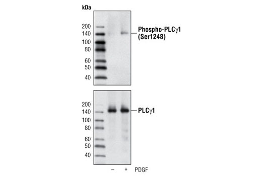 Western blot analysis of extracts from NIH/3T3 cells, untreated or PDGF-treated, using Phospho-PLCγ1 (Ser1248) Antibody (upper) or PLCγ1 Antibody #2822 (lower).