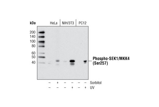 Western blot analysis of extracts from various cell lines, untreated or treated with sorbitol or UV, as indicated, using Phospho-SEK1/MKK4 (Ser257) (C36C11) Rabbit mAb.