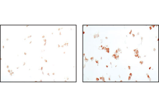 Immunohistochemical analysis of paraffin-embedded 293T cell pellets, untreated (left) or UV-treated (right), using Phospho-p38 MAPK (Thr180/Tyr182) (D3F9) XP<sup>®</sup> Rabbit mAb.