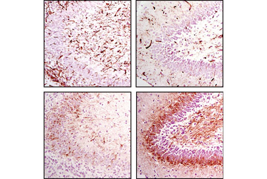Immunohistochemical analysis of paraffin-embedded rat brain, P1 (left) or P14 (right), using Nestin (Rat-401) Mouse mAb (top) or Neurofilament-L (C28E10) Rabbit mAb #2837 (lower). Note decreased Nestin staining as NFL staining increases in the developing rat brain.