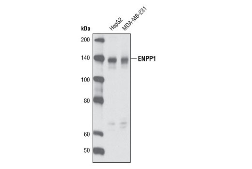Western blot analysis of extracts from HepG2 and MDA-MB-231 cells using ENPP1 Antibody (Human Specific).