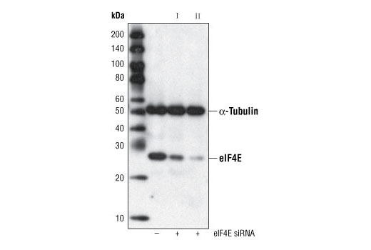 Monoclonal Antibody Immunohistochemistry Paraffin Translation eif4e and p70s6k