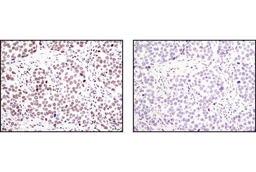 Immunohistochemical analysis of paraffin-embedded human breast carcinoma using LEDGF (C57G11) Rabbit mAb in the presence of control peptide (left) or antigen-specific peptide (right).